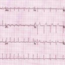 SGEM#133: Just Beat It (Atrial Fibrillation) with Diltiazem or Metoprolol?