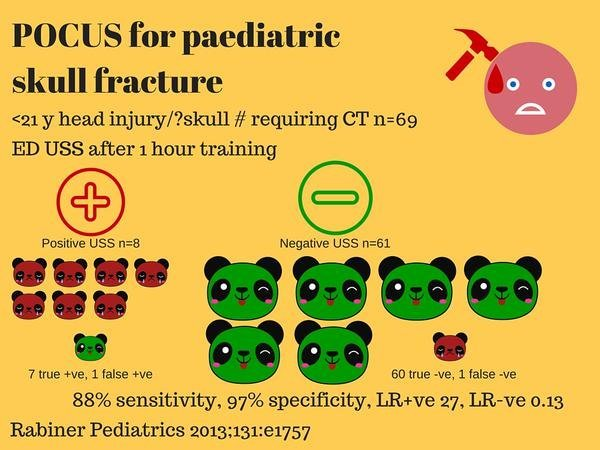 POCUS for Ped Skull Fractures